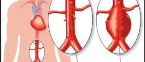 Aneurysm or steno obstruction of the abdominal aorta